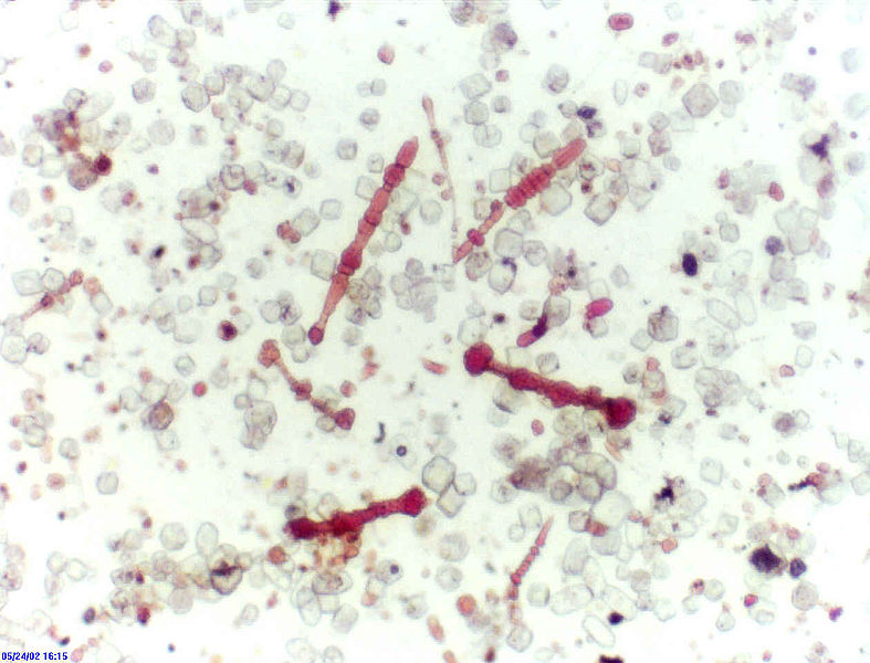787px-Lung_asbestos_bodies